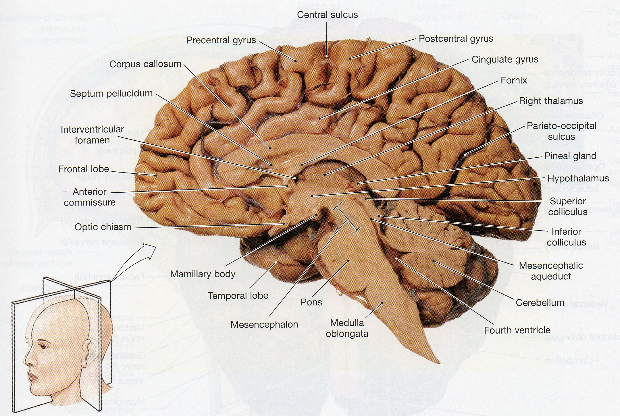 label the terms from figure 2 of the discussion and review on this lateral view of the brain below Background several open-label studies have shown good effect of deep brain stimulation (dbs) in the caudal zona incerta (czi) on tremor, including parkinsonian tremor, and in some cases also a benefit on akinesia and axial symptoms the aim of this study was to evaluate objectively the effect of czi dbs in patients with.