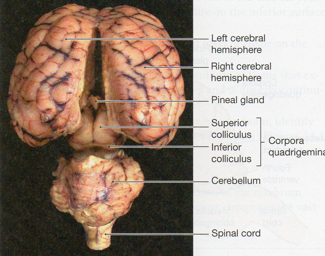 Lamb Brain Diagram Cerebrum - Block And Schematic Diagrams •